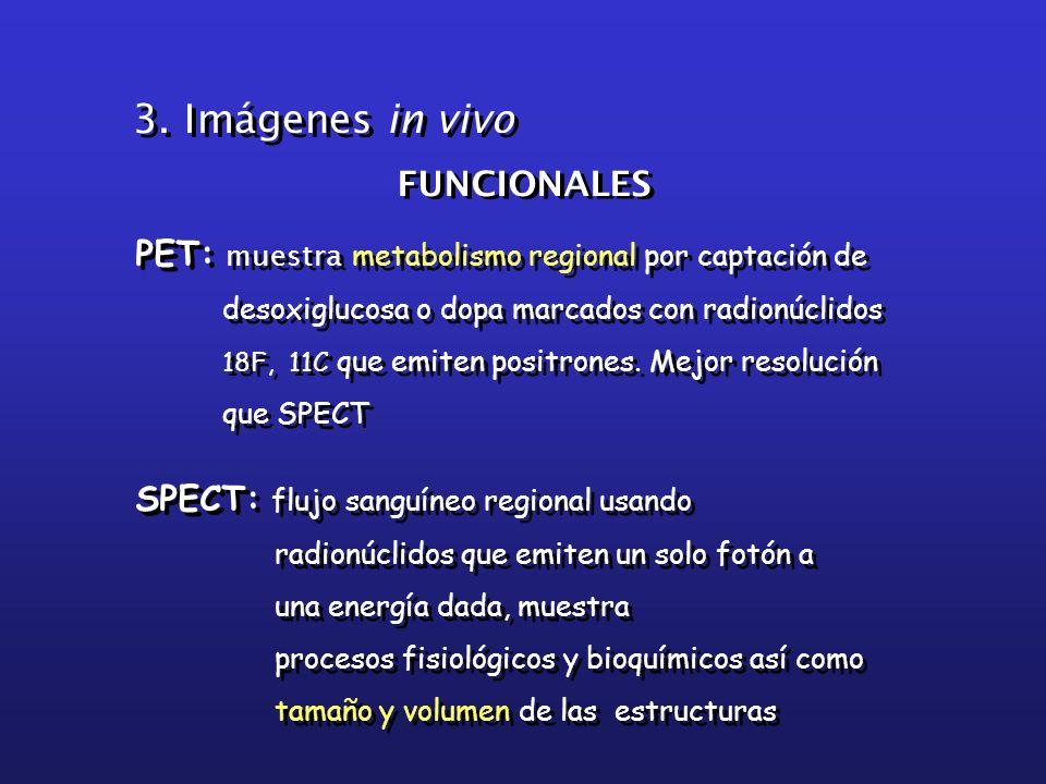 3. Imágenes in vivo FUNCIONALES