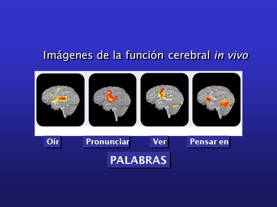 Imágenes de la función cerebral in vivo