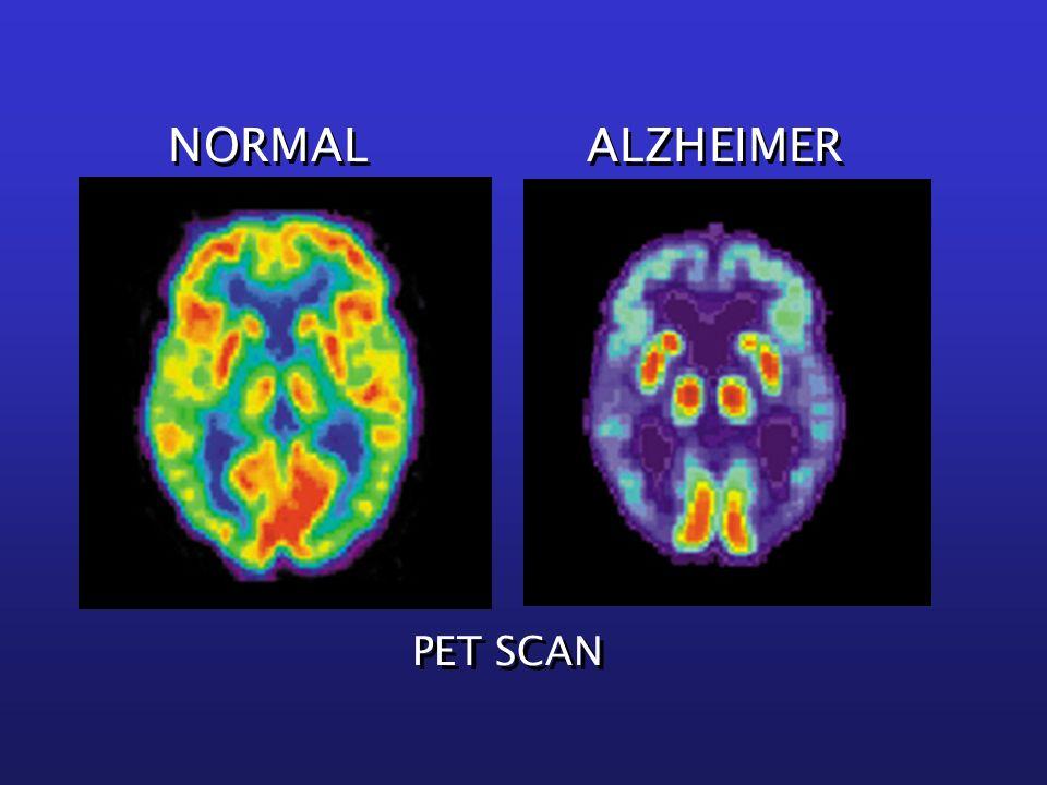 NORMAL ALZHEIMER PET SCAN