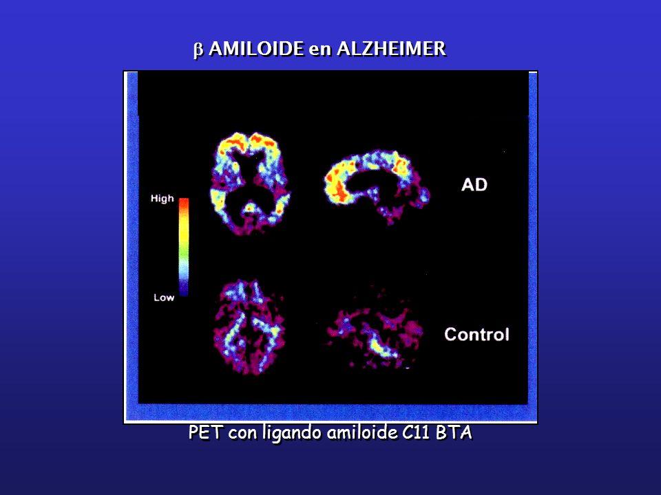 b AMILOIDE en ALZHEIMER