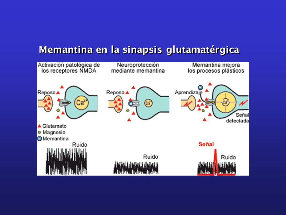 Memantina en la sinapsis glutamatérgica