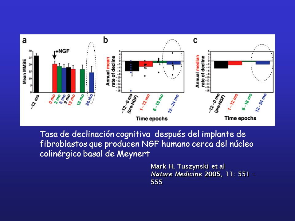 Tasa de declinación cognitiva después del implante de fibroblastos que producen NGF humano cerca del núcleo colinérgico basal de Meynert