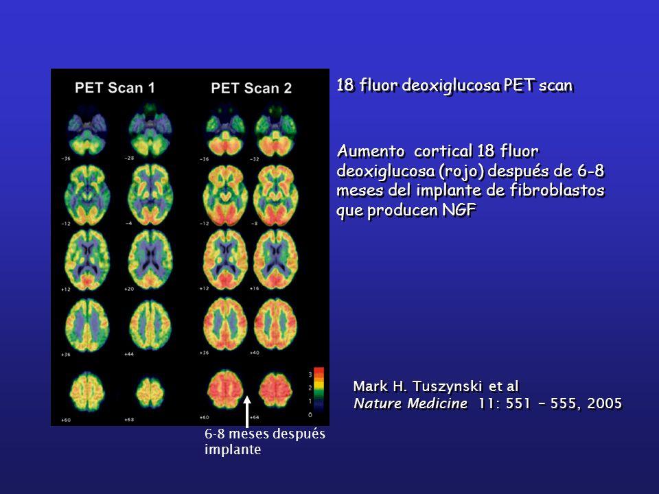 18 fluor deoxiglucosa PET scan