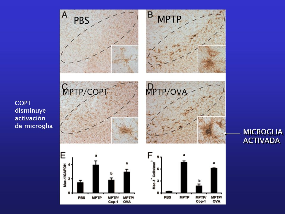 MPTP PBS MPTP/COP1 MPTP/OVA MICROGLIA ACTIVADA COP1
