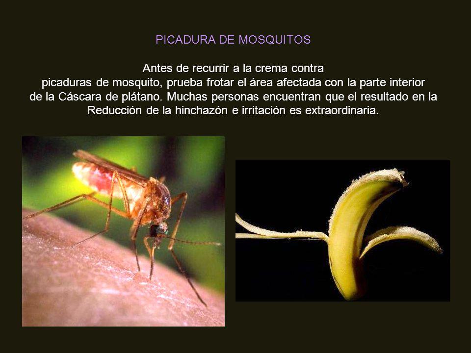 PICADURA DE MOSQUITOS