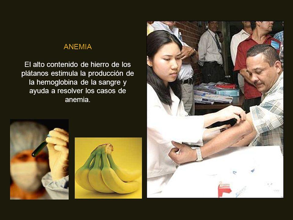 ANEMIA El alto contenido de hierro de los plátanos estimula la producción de la hemoglobina de la sangre y ayuda a resolver los casos de anemia.