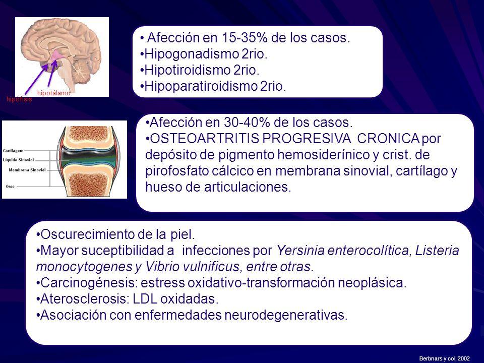 Afección en 15-35% de los casos. Hipogonadismo 2rio.