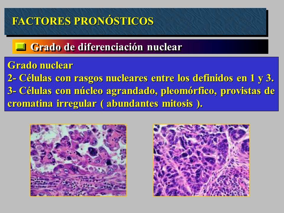 Grado de diferenciación nuclear