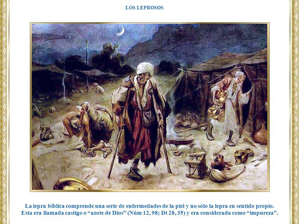 LOS LEPROSOS La lepra bíblica comprende una serie de enfermedades de la piel y no sólo la lepra en sentido propio.