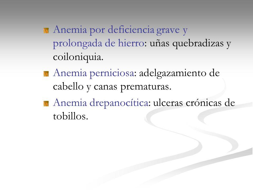 Anemia por deficiencia grave y prolongada de hierro: uñas quebradizas y coiloniquia.
