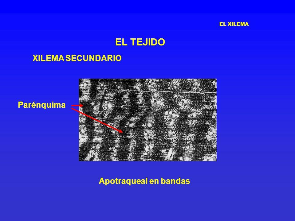 EL XILEMA EL TEJIDO XILEMA SECUNDARIO Parénquima Apotraqueal en bandas