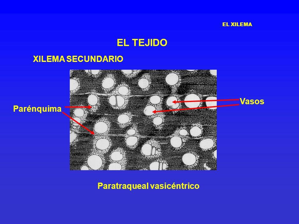 Paratraqueal vasicéntrico