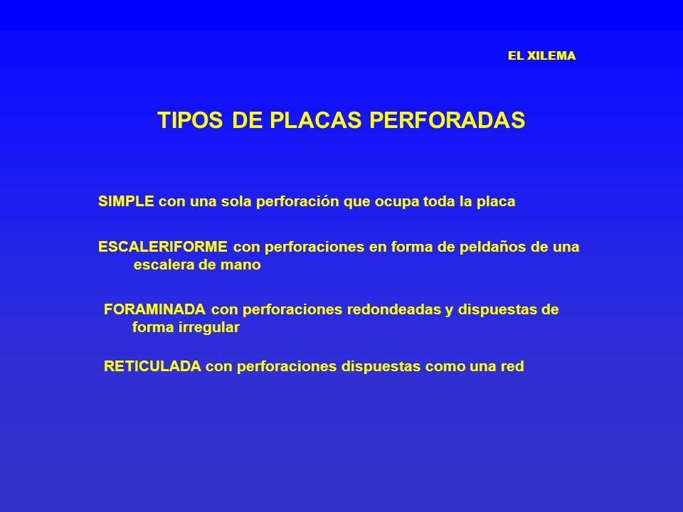 TIPOS DE PLACAS PERFORADAS