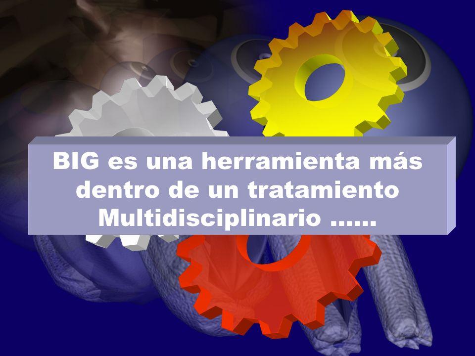 BIG es una herramienta más dentro de un tratamiento