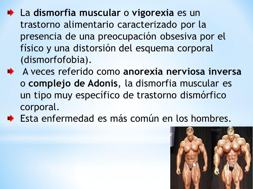 La dismorfia muscular o vigorexia es un trastorno alimentario caracterizado por la presencia de una preocupación obsesiva por el físico y una distorsión del esquema corporal (dismorfofobia).