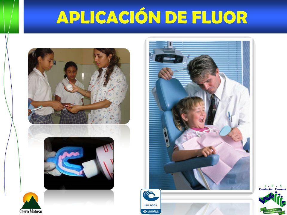 APLICACIÓN DE FLUOR