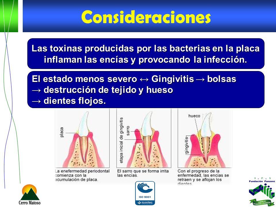 Consideraciones Las toxinas producidas por las bacterias en la placa