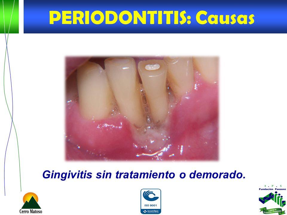 PERIODONTITIS: Causas Gingivitis sin tratamiento o demorado.