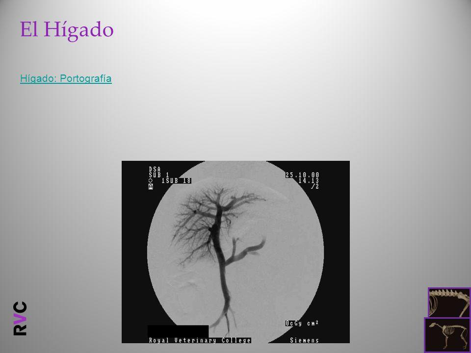 El Hígado Hígado: Portografía
