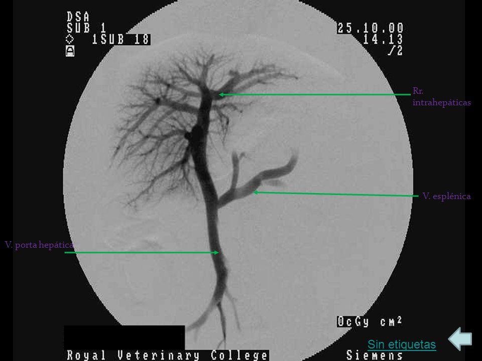 Rr. intrahepáticas V. esplénica V. porta hepática Sin etiquetas