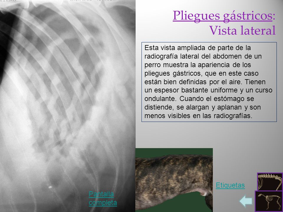 Pliegues gástricos: Vista lateral