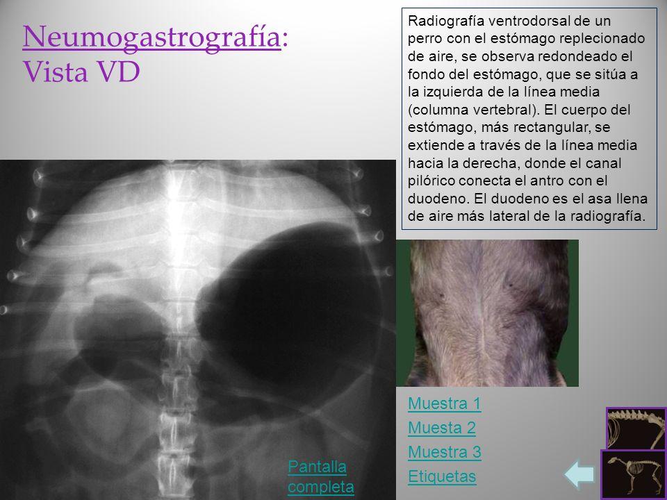 Neumogastrografía: Vista VD Muestra 1 Muesta 2 Muestra 3