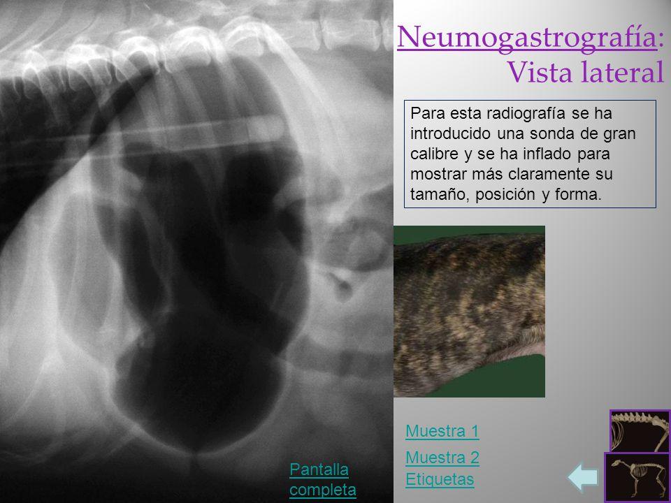 Neumogastrografía: Vista lateral
