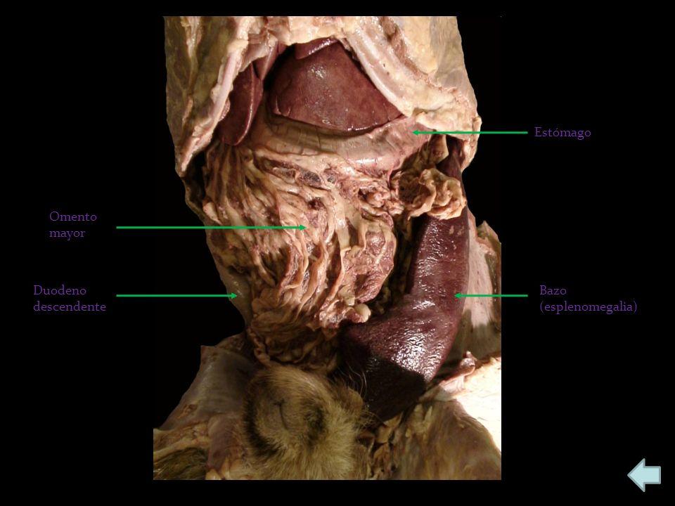 Estómago Omento mayor Duodeno descendente Bazo (esplenomegalia)