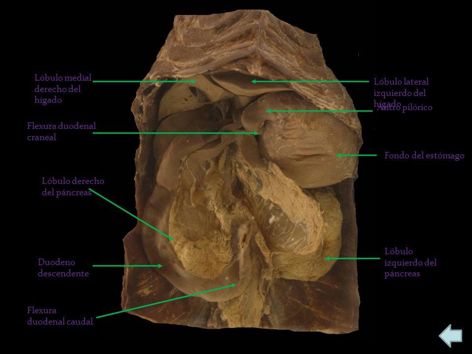Lóbulo medial derecho del hígado