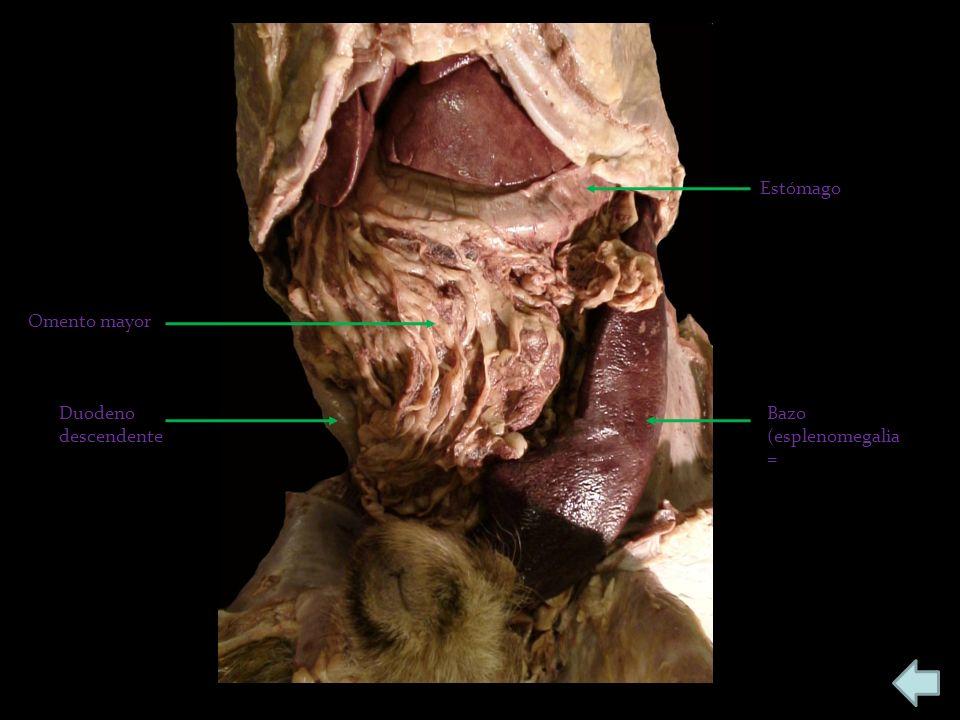 Estómago Omento mayor Duodeno descendente Bazo (esplenomegalia=