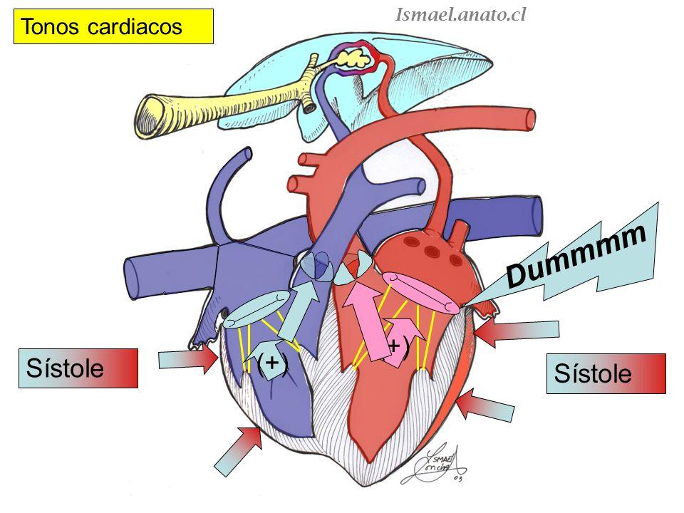 Ismael.anato.cl Tonos cardiacos Dummmm (+) (+) Sístole Sístole