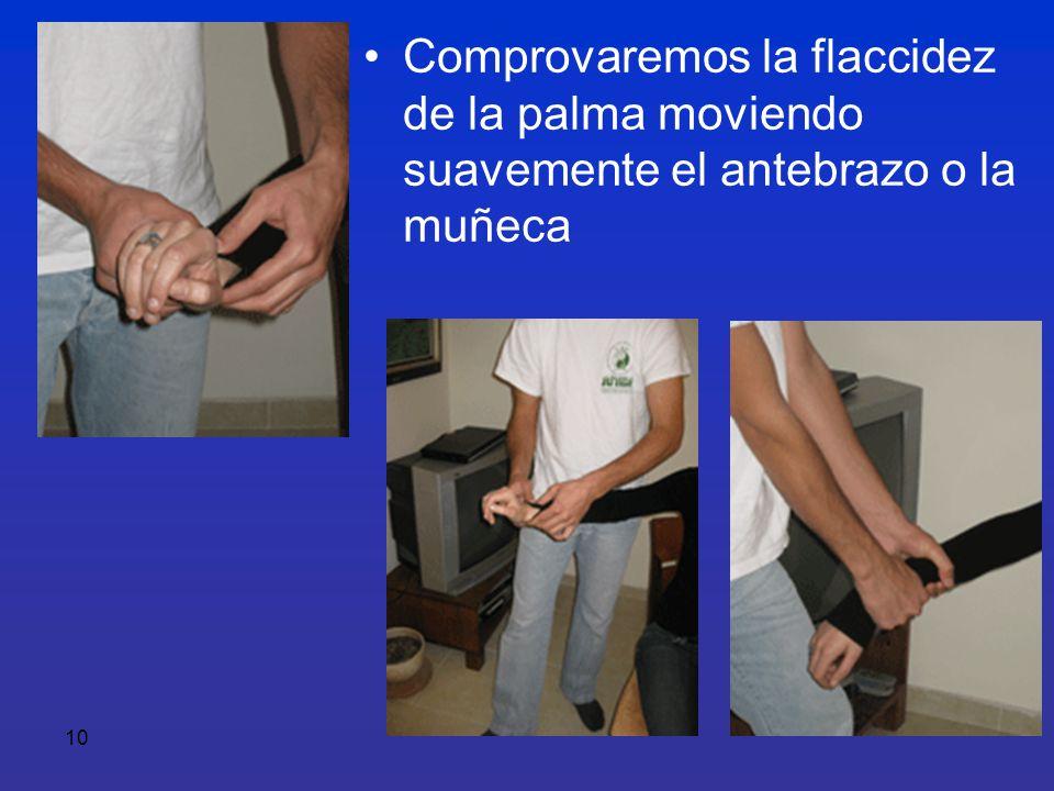 Comprovaremos la flaccidez de la palma moviendo suavemente el antebrazo o la muñeca