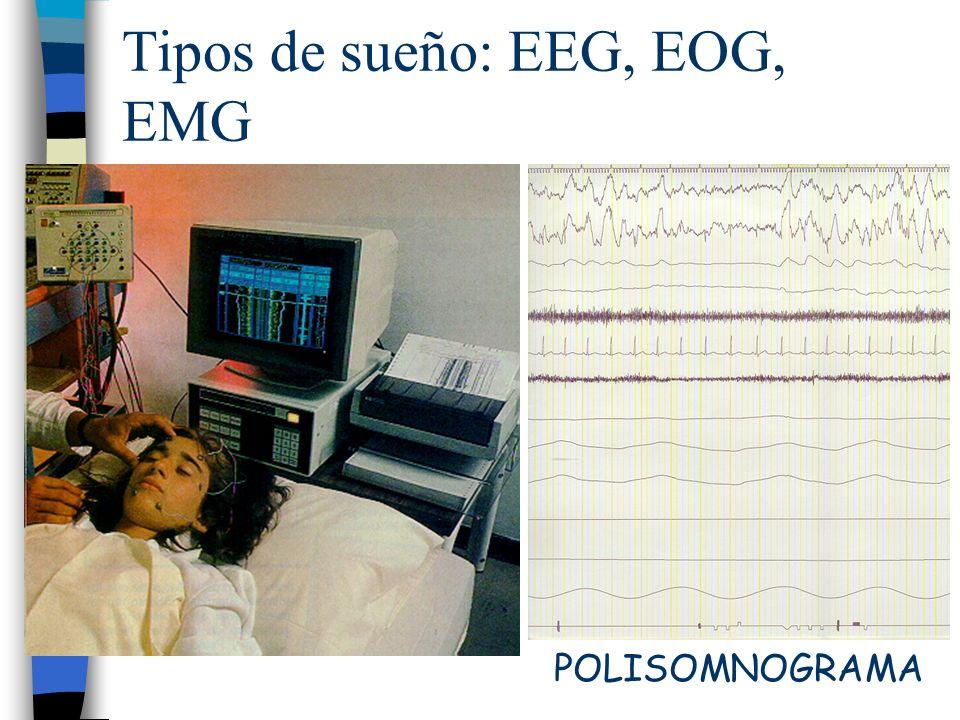 Tipos de sueño: EEG, EOG, EMG