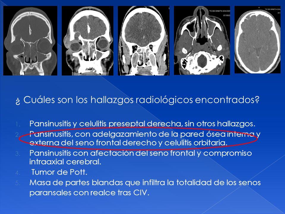 ¿ Cuáles son los hallazgos radiológicos encontrados