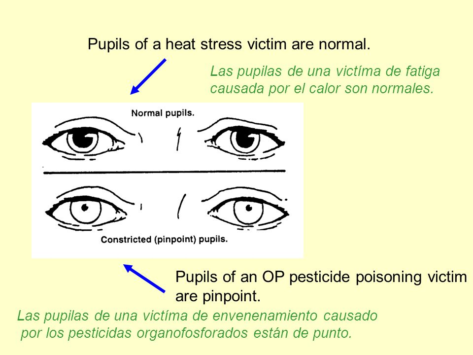 Pupils of a heat stress victim are normal.