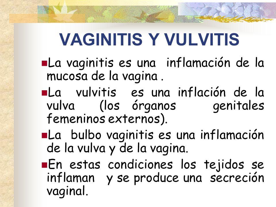 VAGINITIS Y VULVITIS La vaginitis es una inflamación de la mucosa de la vagina .