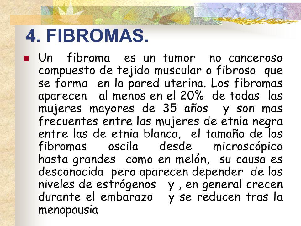 4. FIBROMAS.