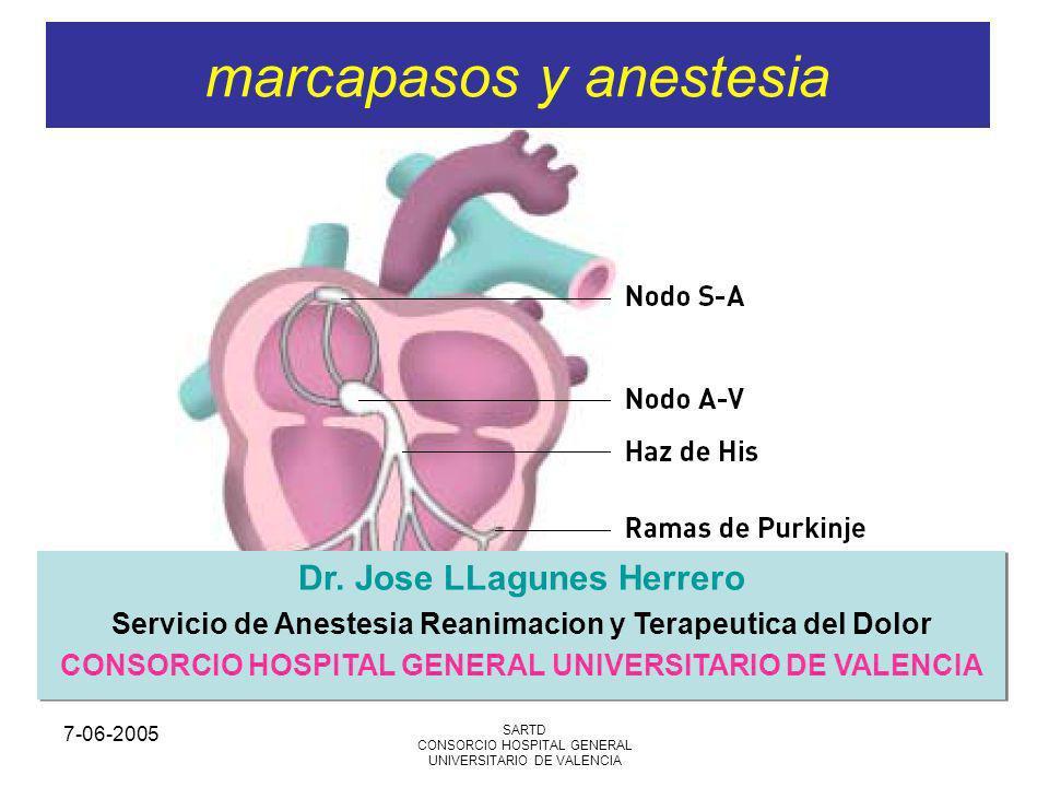 marcapasos y anestesia