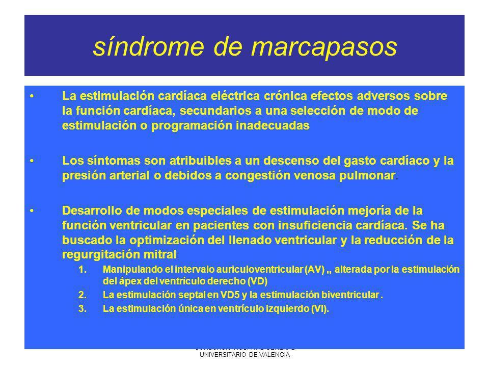 síndrome de marcapasos