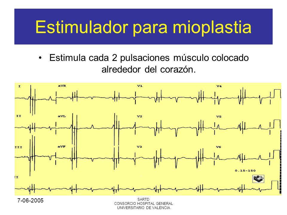 Estimulador para mioplastia