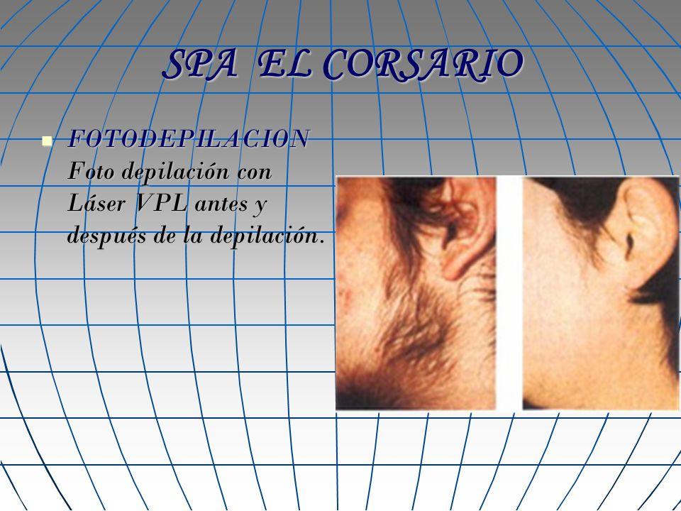 SPA EL CORSARIO FOTODEPILACION Foto depilación con Láser VPL antes y después de la depilación.