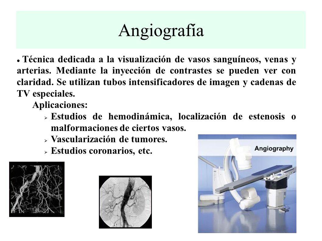 Angiografía