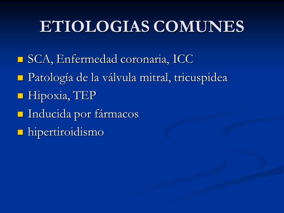 ETIOLOGIAS COMUNES SCA, Enfermedad coronaria, ICC