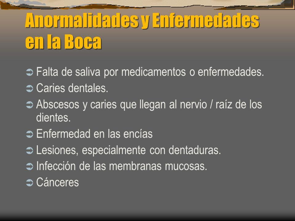 Anormalidades y Enfermedades en la Boca