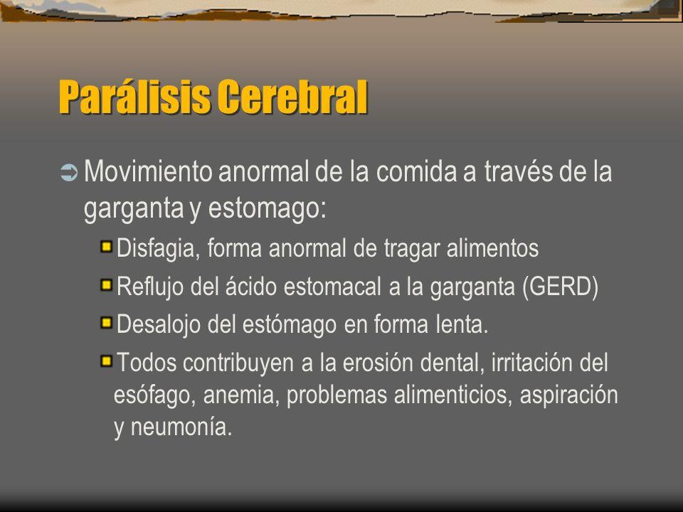 Parálisis Cerebral Movimiento anormal de la comida a través de la garganta y estomago: Disfagia, forma anormal de tragar alimentos.