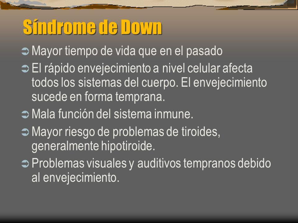 Síndrome de Down Mayor tiempo de vida que en el pasado