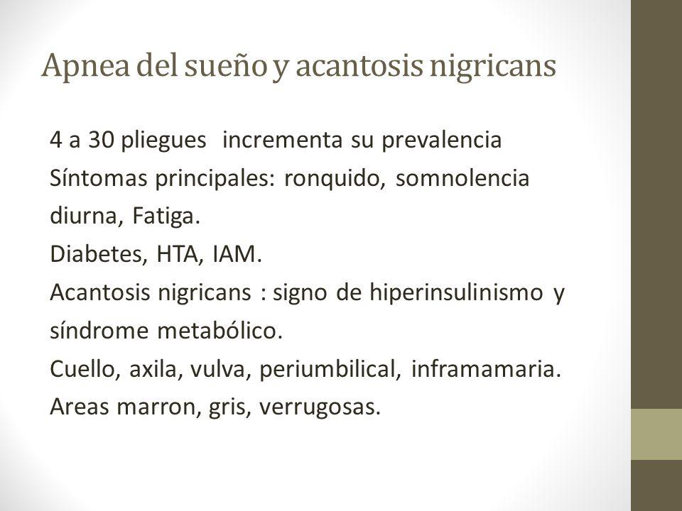 Apnea del sueño y acantosis nigricans