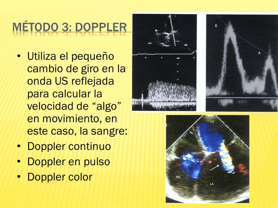 Método 3: Doppler