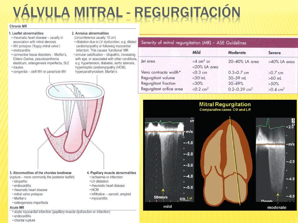 Válvula mitral - regurgitación