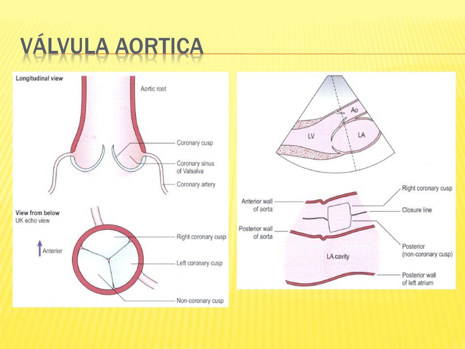 Válvula aortica